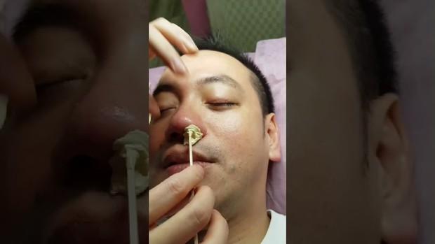 Nhổ lông mũi, nam thanh niên tử vong vì bị viêm màng não - Ảnh 2.