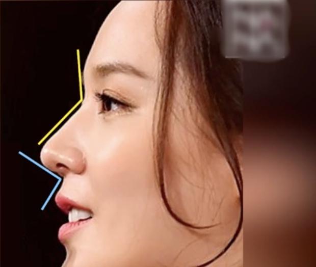 Bác sĩ thẩm mỹ phân tích gương mặt bộ 3 mỹ nhân đẹp nhất Penthouse: Eugene là báu vật, Kim So Yeon mang tỷ lệ... của nam giới? - Ảnh 3.
