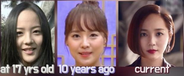 Bác sĩ thẩm mỹ phân tích gương mặt bộ 3 mỹ nhân đẹp nhất Penthouse: Eugene là báu vật, Kim So Yeon mang tỷ lệ... của nam giới? - Ảnh 2.