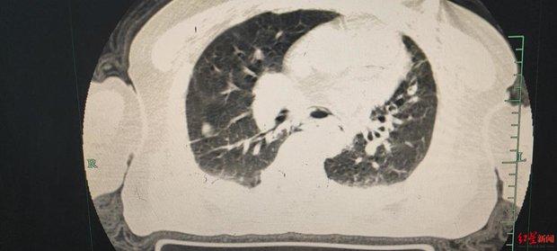Ăn quá no, người đàn ông 68 tuổi bị vỡ thực quản hở 5cm, hở luôn cả khoang ngực - Ảnh 2.