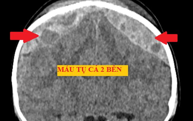 Cưa hộp sọ cứu bé trai xuất huyết não do ngã giường tầng - Ảnh 1.