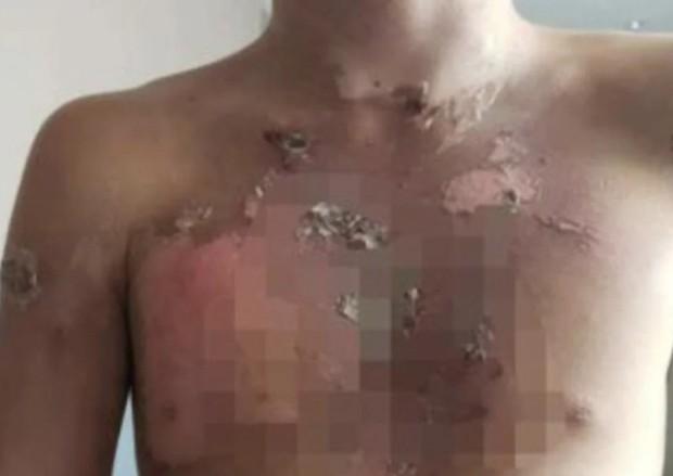 5 cậu bé 10 tuổi bị bạo hành dã man liên tục bằng nước sôi, hình ảnh vết thương và danh tính 2 kẻ ác gây căm phẫn tột độ - Ảnh 1.