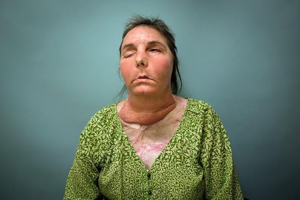 Bị chồng cũ tạt axit hủy hoại gương mặt thành quái vật, người phụ nữ được phẫu thuật ghép mặt từ người chết cho kết quả đầy ngỡ ngàng - Ảnh 6.