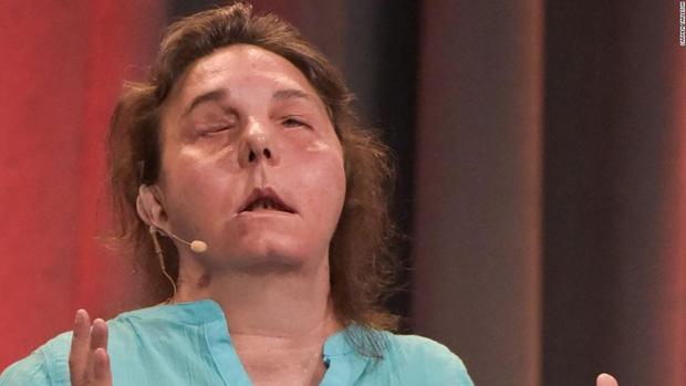 Bị chồng cũ tạt axit hủy hoại gương mặt thành quái vật, người phụ nữ được phẫu thuật ghép mặt từ người chết cho kết quả đầy ngỡ ngàng - Ảnh 5.