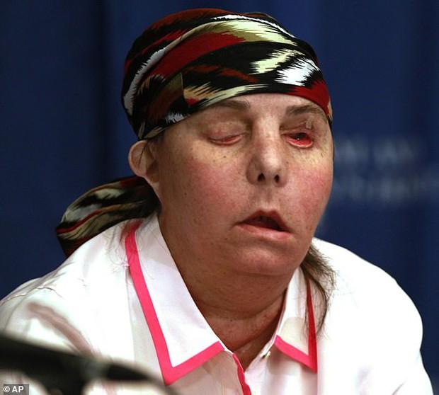 Bị chồng cũ tạt axit hủy hoại gương mặt thành quái vật, người phụ nữ được phẫu thuật ghép mặt từ người chết cho kết quả đầy ngỡ ngàng - Ảnh 7.
