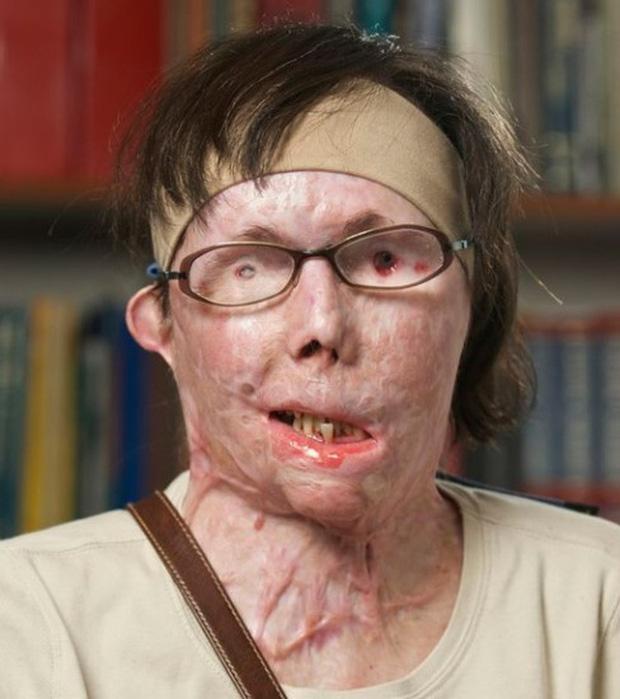 Bị chồng cũ tạt axit hủy hoại gương mặt thành quái vật, người phụ nữ được phẫu thuật ghép mặt từ người chết cho kết quả đầy ngỡ ngàng - Ảnh 4.