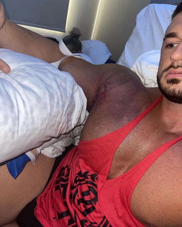Lực sĩ bị đứt cơ ngực ghê rợn khi cố nâng mức tạ 220kg, nhìn hình ảnh chấn thương trước phẫu thuật tất cả lại càng xót xa hơn - Ảnh 2.