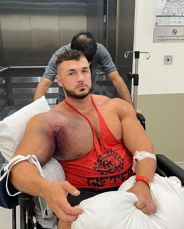 Lực sĩ bị đứt cơ ngực ghê rợn khi cố nâng mức tạ 220kg, nhìn hình ảnh chấn thương trước phẫu thuật tất cả lại càng xót xa hơn - Ảnh 3.