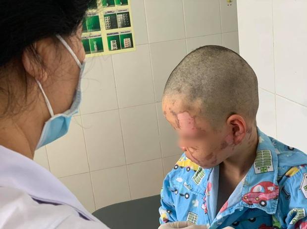 Bé trai 10 tuổi nghịch theo clip trên mạng, tự mua cồn về đốt gây bỏng toàn bộ mặt - Ảnh 1.