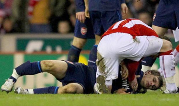 Từ sự cố của Hùng Dũng, nhìn lại những chấn thương kinh hãi nổi tiếng nhất thế giới bóng đá: Người giải nghệ, người không thể lấy lại phong độ - Ảnh 8.