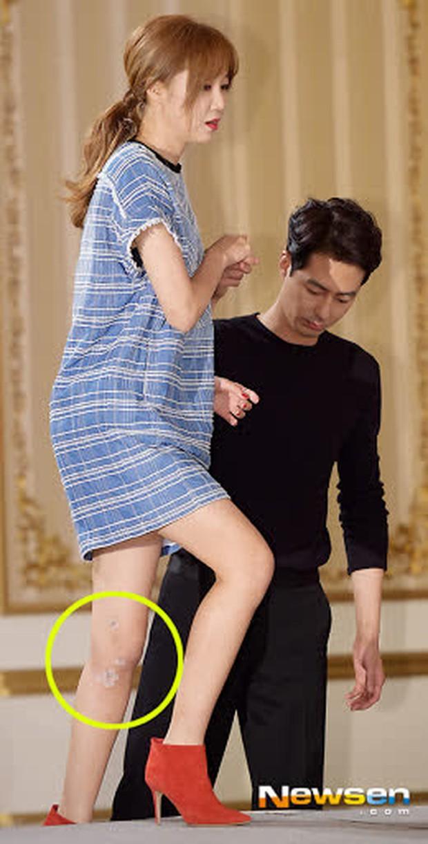 12 diễn viên Hàn Quốc suýt chết vì tai nạn giao thông: Lee Min Ho sợ phim hành động sau cú va chạm ở City Hunter - Ảnh 13.