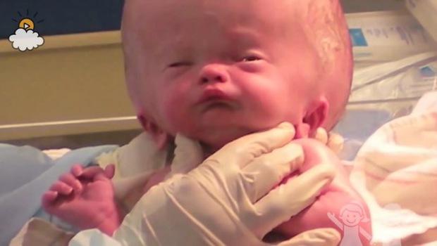 Bé trai sinh ra với căn bệnh não úng thủy, 6 tháng tuổi đã phải lên bàn mổ liên tục, sở hữu dung mạo hiện tại khiến ai cũng trầm trồ - Ảnh 1.