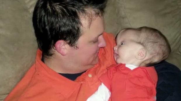 Bé trai sinh ra với căn bệnh não úng thủy, 6 tháng tuổi đã phải lên bàn mổ liên tục, sở hữu dung mạo hiện tại khiến ai cũng trầm trồ - Ảnh 3.