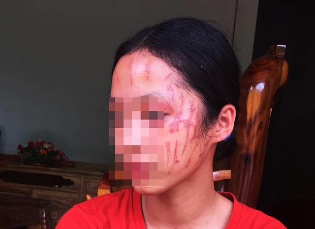 Rùng mình hình ảnh nữ sinh lớp 8 bị đàn chị cào nát mặt: Hé lộ nguyên nhân - Ảnh 1.