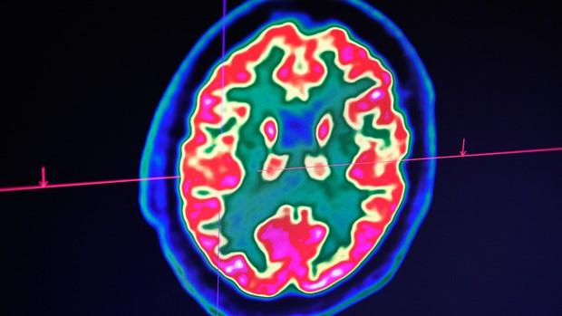 Gen thây ma khiến tế bào não người vẫn hoạt động nhiều giờ sau qua đời - Ảnh 1.