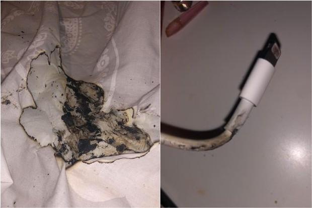 iPhone bốc cháy lúc đang cắm sạc trên giường, một thiếu niên bỏng mặt - Ảnh 1.