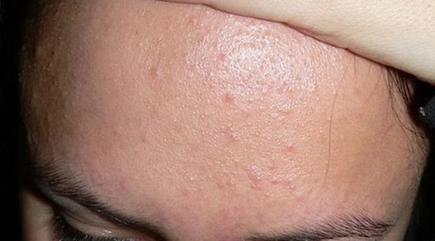 4 sự thay đổi trên gương mặt là dấu hiệu cảnh báo ung thư cổ tử cung - Ảnh 1.