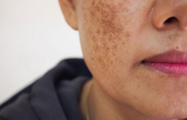 4 sự thay đổi trên gương mặt là dấu hiệu cảnh báo ung thư cổ tử cung - Ảnh 2.