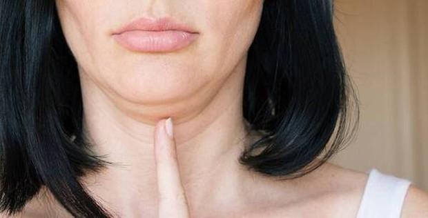 4 sự thay đổi trên gương mặt là dấu hiệu cảnh báo ung thư cổ tử cung - Ảnh 3.