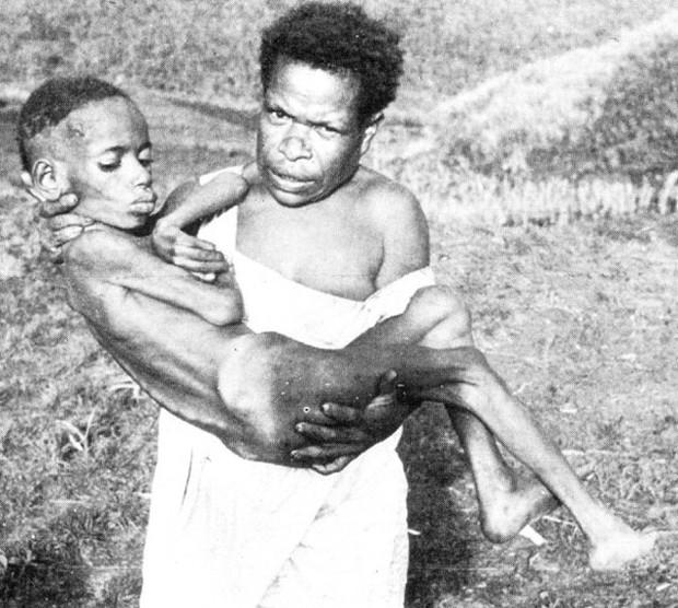Loại bệnh lạ khiến người mắc phải cười cho đến chết, nguyên nhân đến từ một hủ tục rợn gáy của bộ tộc cổ xưa - Ảnh 3.