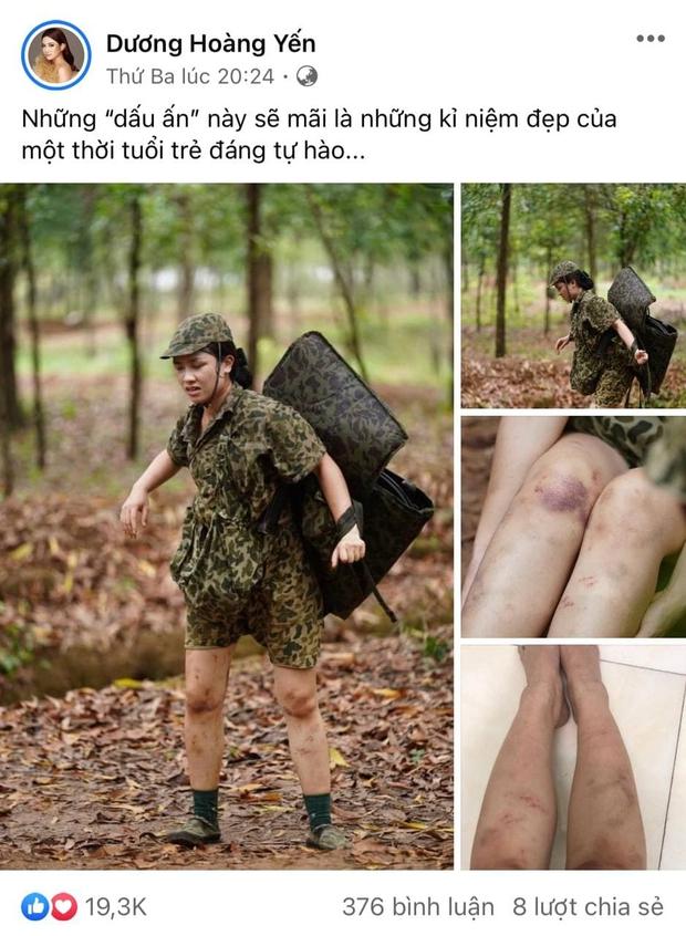 Dương Hoàng Yến chia sẻ hình ảnh đôi chân đầy hoa văn tím ngắt khi đi nhập ngũ khiến ai nấy đều xót xa - Ảnh 1.
