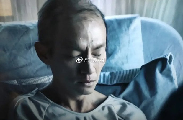 Fan choáng nặng với ngoại hình ốm yếu, rụng hết tóc của mỹ nam giường chiếu Trương Chấn sau khi giảm 13kg - Ảnh 2.