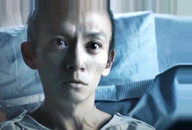 Fan choáng nặng với ngoại hình ốm yếu, rụng hết tóc của mỹ nam giường chiếu Trương Chấn sau khi giảm 13kg - Ảnh 1.