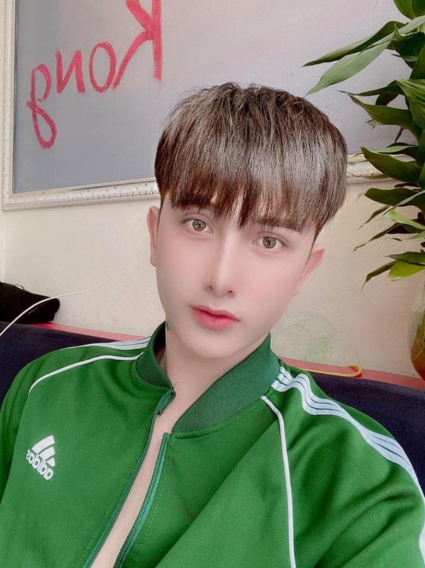 Hành trình lột xác gây chấn động báo Anh của chàng trai Hưng Yên, 25 tuổi đã trải qua hơn 20 lần PTTM khiến cả họ không nhận ra - Ảnh 2.