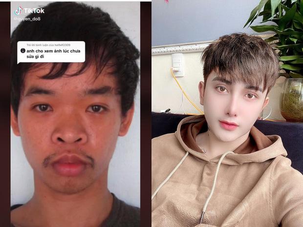 Phẫn nộ thanh niên Việt dùng ảnh tội phạm hiếp dâm để miêu tả quá trình lột xác trước và sau khi phẫu thuật thẩm mỹ - Ảnh 3.