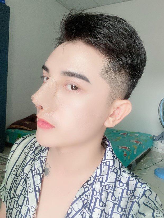 Hành trình lột xác gây chấn động báo Anh của chàng trai Hưng Yên, 25 tuổi đã trải qua hơn 20 lần PTTM khiến cả họ không nhận ra - Ảnh 5.
