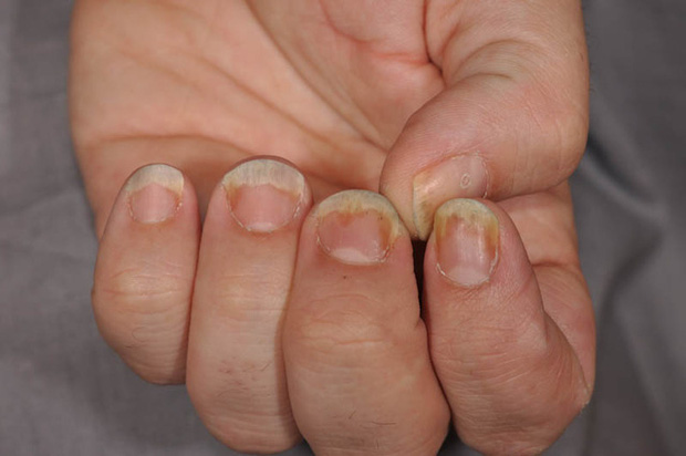 Nhìn móng tay đọc bệnh: Người bị gan nhiễm mỡ thường xuất hiện dấu hiệu này, đa số chỉ nghĩ là mất thẩm mỹ - Ảnh 1.