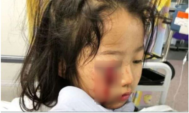 Bé trai 4 tuổi bị thương tổn nặng ở tai vì đồ vật này trong siêu thị, bất kỳ cửa hàng quần áo nào cũng có - Ảnh 2.