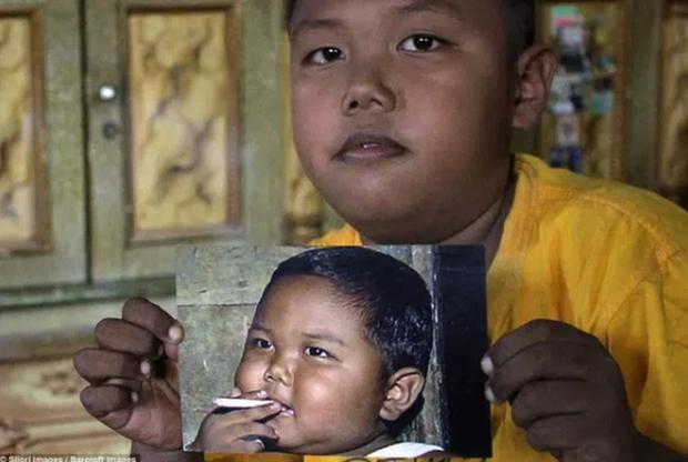 Cậu bé từng gây bão vì hút 40 điếu thuốc lá một ngày năm ấy: Mới 9 tuổi đã trải qua 2 biến cố, cũng chỉ tại bố mẹ làm điều này - Ảnh 6.