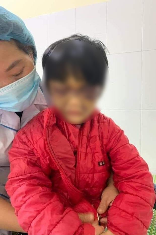 Hải Dương: Bé gái 6 tuổi bị mẹ đẻ bạo hành thâm tím mặt mũi, nhốt trong nhà - Ảnh 1.
