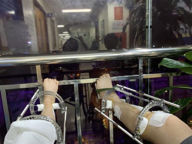 Nghe cô nàng review trọn quá trình kéo dài chân thêm 7cm tại viện 108 mới thấy: Để đẹp bạn còn cần phải dũng cảm nữa! - Ảnh 11.