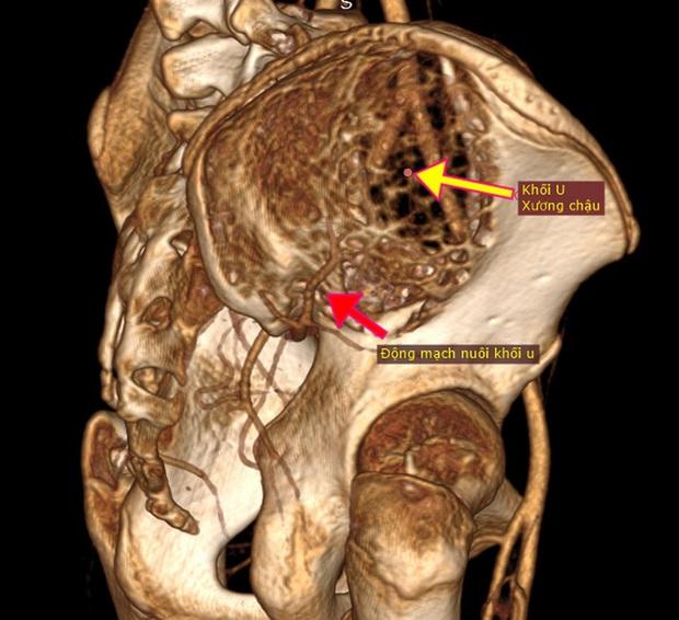 Tưởng con đau hông vì đang tuổi ăn tuổi lớn, hóa ra thủ phạm là khối u khổng lồ như quả bom nổ chậm - Ảnh 2.