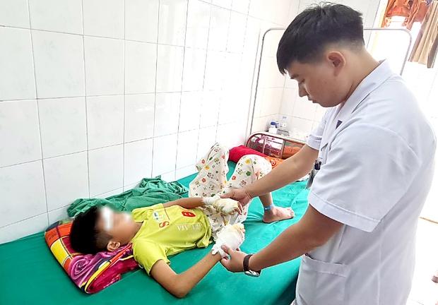 Nghệ An: Pin phát nổ, bé 13 tuổi dập nát 2 bàn tay - Ảnh 1.