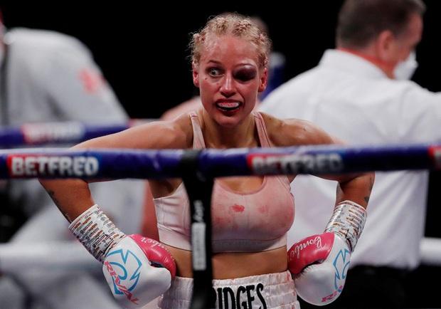 Nữ võ sĩ xinh đẹp bị đánh biến dạng mặt khi tham gia trận tranh đai thế giới - Ảnh 3.