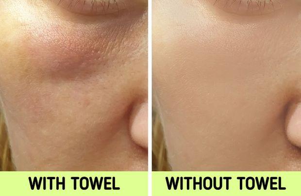 Nếu biết lý do khiến làn da ngày càng nhăn nheo mụn nhọt, bạn sẽ cạch đến già việc dùng khăn lau mặt - Ảnh 6.
