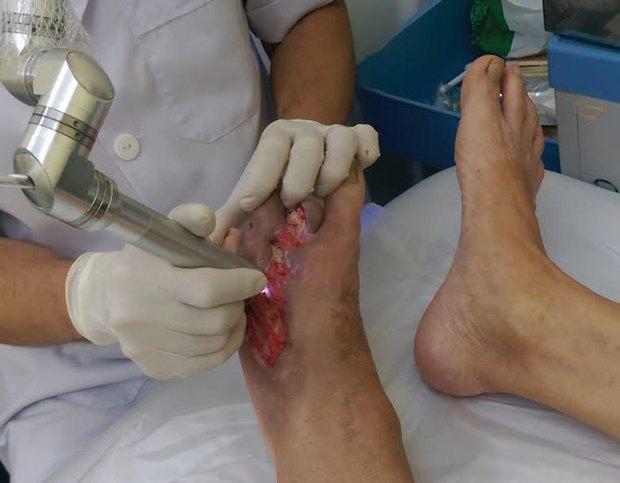 Ngâm chân rất tốt cho sức khỏe nhưng có 4 nhóm người tuyệt đối đừng ngâm chân kẻo gây hại cho sức khỏe - Ảnh 1.
