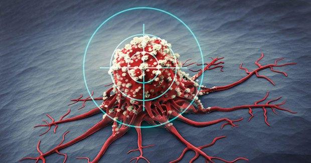 1/6 bệnh nhân mắc ung thư đều do viêm: Nếu 5 vị trí này trên cơ thể bị viêm thì bạn hãy cảnh giác bệnh ung thư đang đến gần - Ảnh 1.