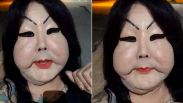 Đang bình thường, người phụ nữ bị biến dạng mặt kinh hoàng vì thực hiện thủ thuật làm đẹp nhiều cô gái ưa chuộng - Ảnh 1.