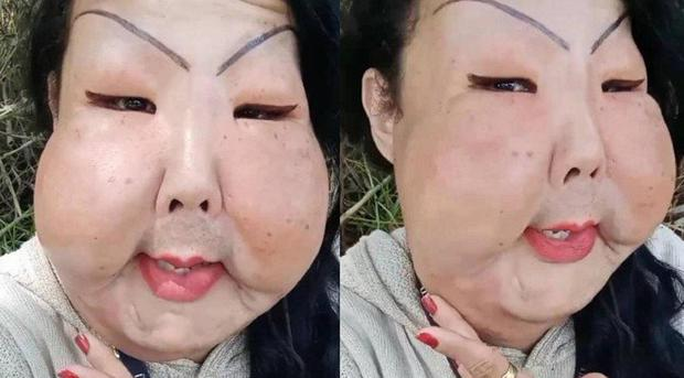 Đang bình thường, người phụ nữ bị biến dạng mặt kinh hoàng vì thực hiện thủ thuật làm đẹp nhiều cô gái ưa chuộng - Ảnh 4.