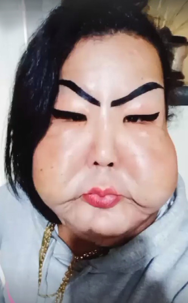 Đang bình thường, người phụ nữ bị biến dạng mặt kinh hoàng vì thực hiện thủ thuật làm đẹp nhiều cô gái ưa chuộng - Ảnh 2.