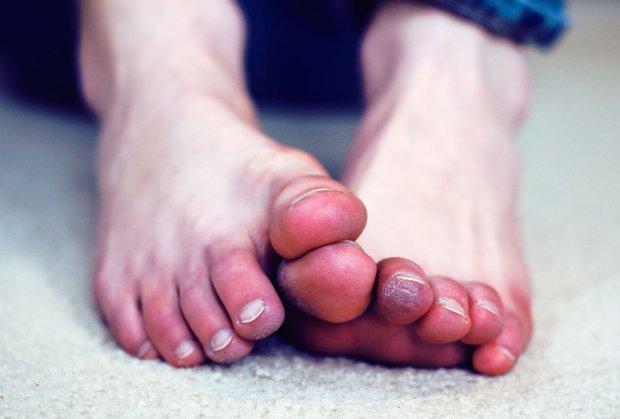 4 tình trạng xảy ra ở bàn chân ngầm cảnh báo nhiều vấn đề sức khỏe nghiêm trọng mà bạn không nên chủ quan - Ảnh 4.