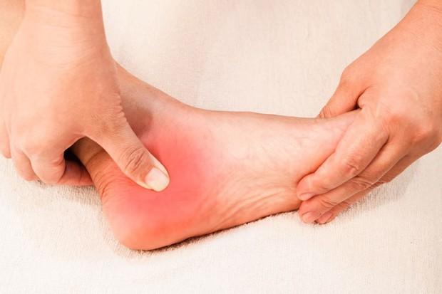 4 tình trạng xảy ra ở bàn chân ngầm cảnh báo nhiều vấn đề sức khỏe nghiêm trọng mà bạn không nên chủ quan - Ảnh 2.