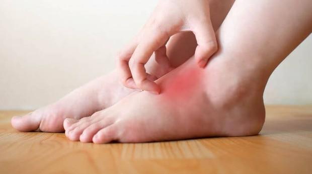 4 tình trạng xảy ra ở bàn chân ngầm cảnh báo nhiều vấn đề sức khỏe nghiêm trọng mà bạn không nên chủ quan - Ảnh 3.