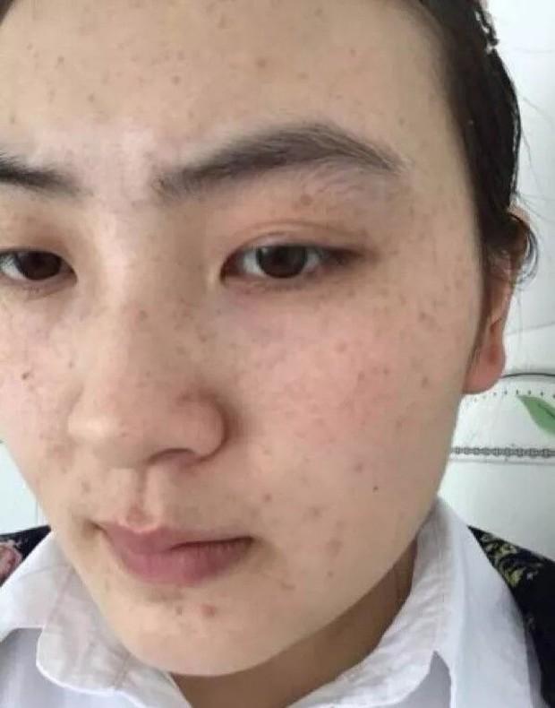 3 biểu hiện xấu xí trên khuôn mặt cho thấy buồng trứng của bạn đang lão hóa sớm, cần được chăm sóc càng sớm càng tốt - Ảnh 1.