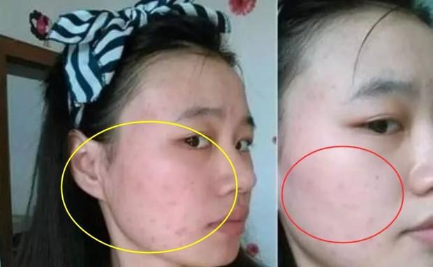 3 biểu hiện xấu xí trên khuôn mặt cho thấy buồng trứng của bạn đang lão hóa sớm, cần được chăm sóc càng sớm càng tốt - Ảnh 3.