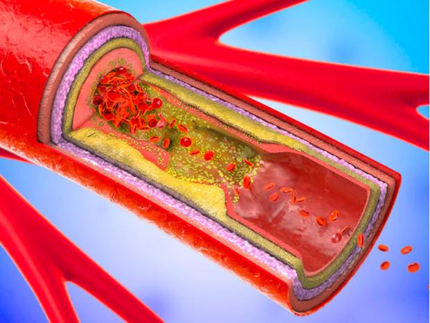 3 loại nước chấm có nguy cơ đe dọa sức khỏe mạch máu hơn cả đường và muối, thế nhưng mọi người vẫn ăn nhiều - Ảnh 1.